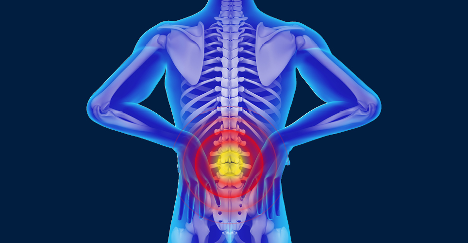 X-ray illustration of back with radiating red area at lower back.